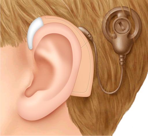 Imagen de implante coclear