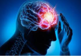 imagen de un cerebro con un destello