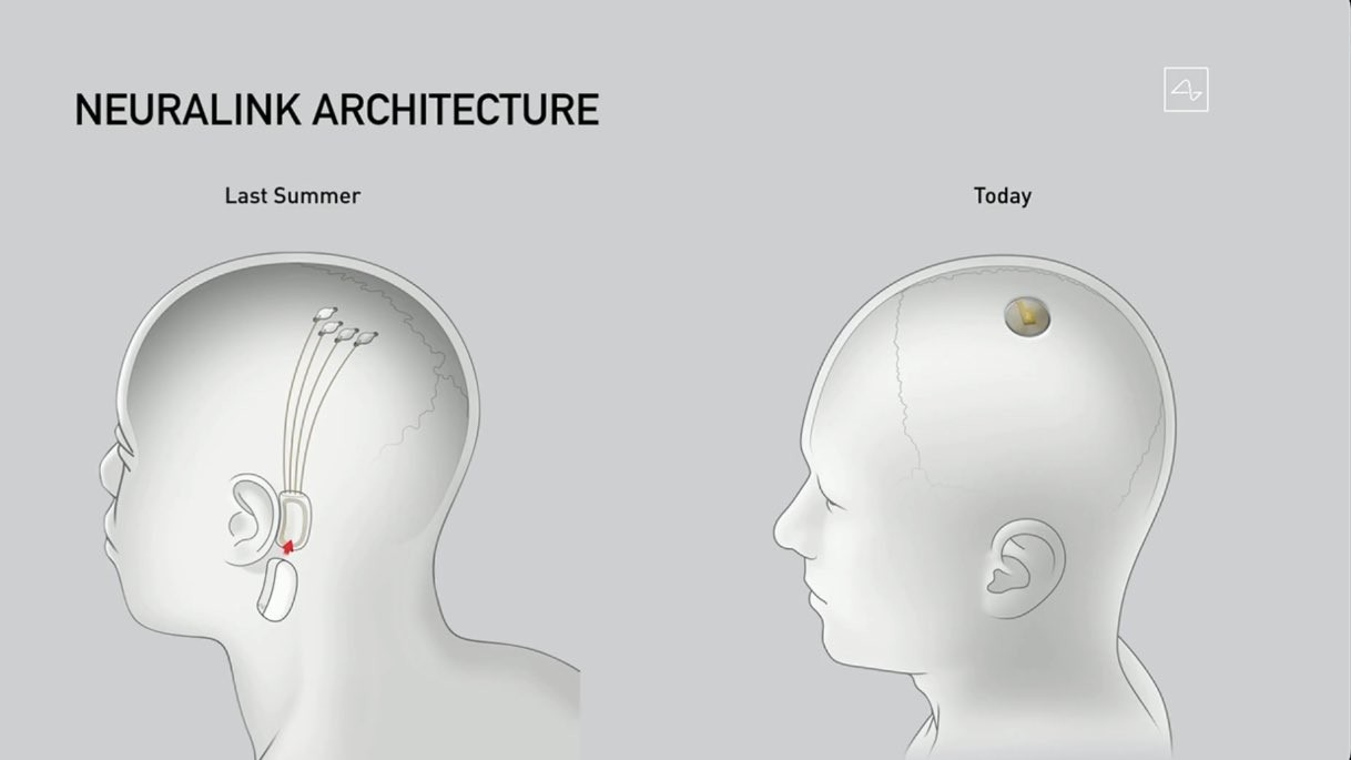 Imagen del prototipo del Wereable