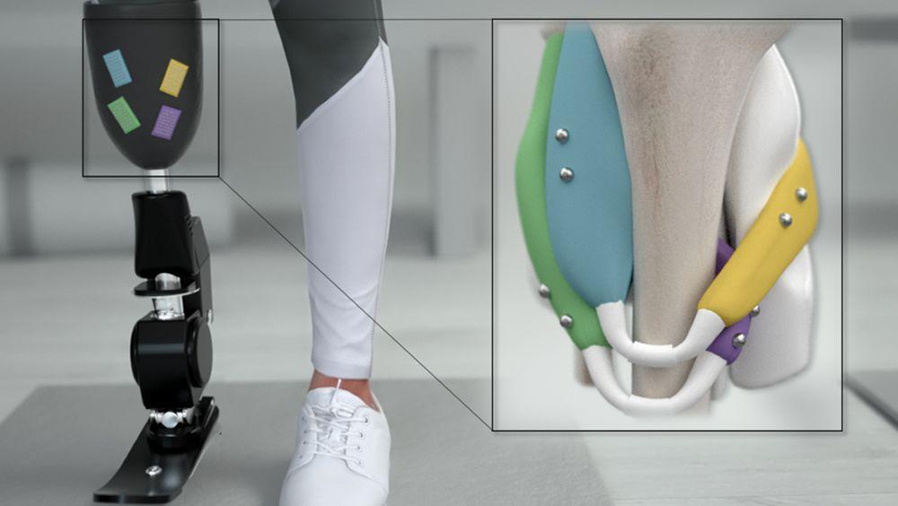 Foto de ejemplo de las perlas magnéticas incluidas en las prótesis